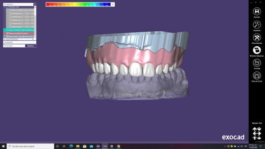 Escaneo de sonrisa 2
