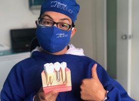 implantes_dental_bueno.jpg